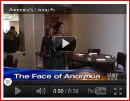 анорексия видео